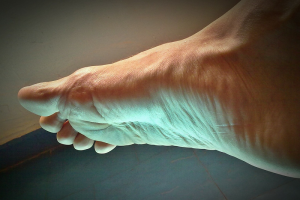 plantar fasciitis causes symptoms treatments