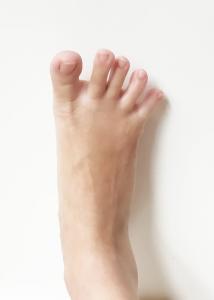 foot pain toe splay